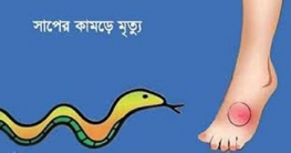 বাগাতিপাড়ায় ঘুমন্ত ননদ-ভাবিকে সাপের দংশন, ননদের মৃত্যু