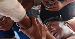 বাগাতিপাড়ায় দুর্বৃত্তের হামলায় দলিল লেখক নেতা আহত, ফাঁকা গুলি